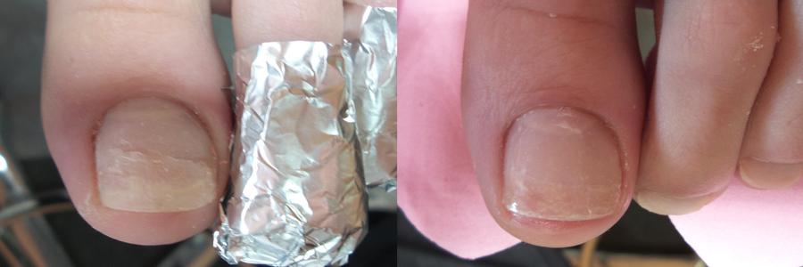 Протезирование ногтя