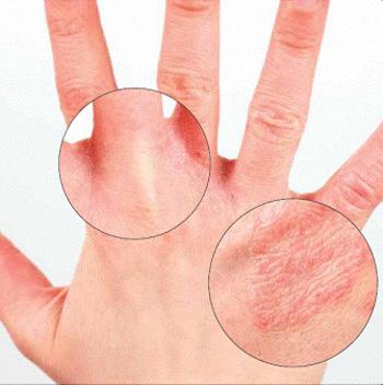 dermatit